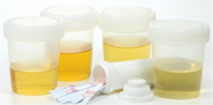 WHAT COLOR IS YOUR URINE?